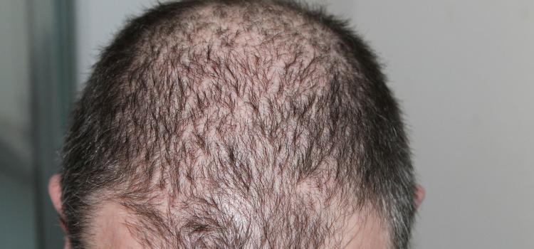 10 lucruri de stiut despre caderea parului. Ce este alopecia areata?
