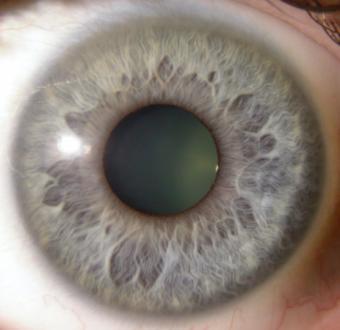 Iridoscopia