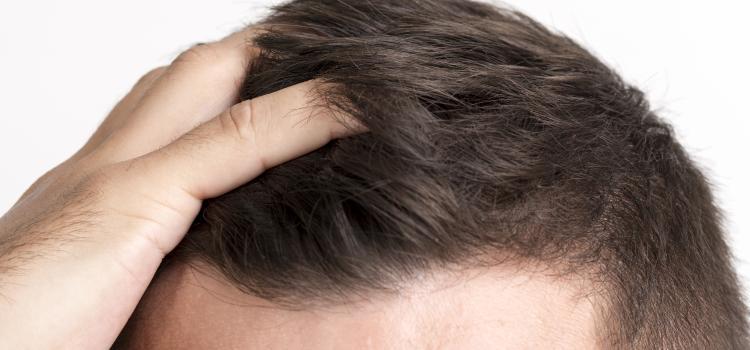 Suferi de alopecie? Remedii naturale pentru caderea parului, pentru barbati